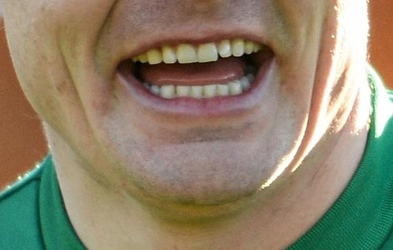 O'Driscoll smile