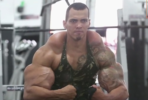Video: A bodybuilder injected his muscles with synthol oil