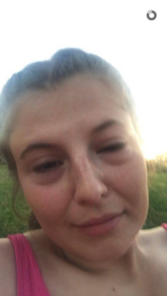 Eye Allergy Drops >> PICS: This Snapchat story shows that hayfever in Ireland ...